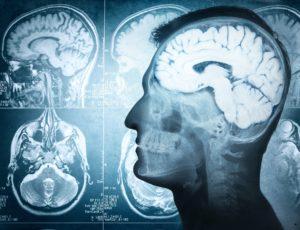 Je brein beïnvloeden @ Het Huis van Waalre | Waalre | Noord-Brabant | Nederland
